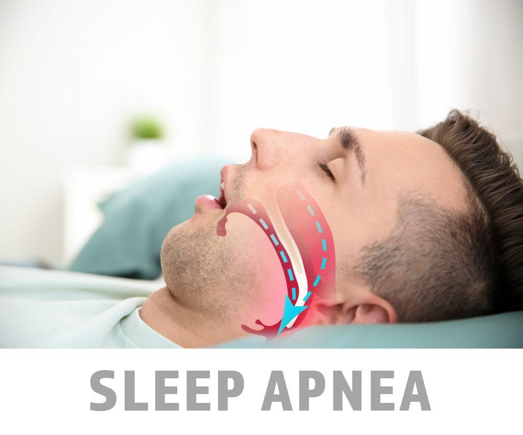 Man sleeping on back with sleep apnea illustration, for treatment contact Crown Point dentist.